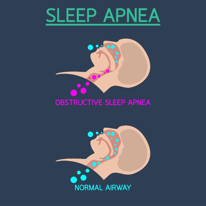 Sleep Apnea Diagram | Fairfax VA Dentist