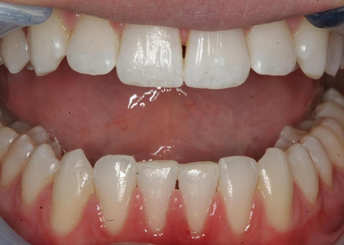 teeth with dental bonding