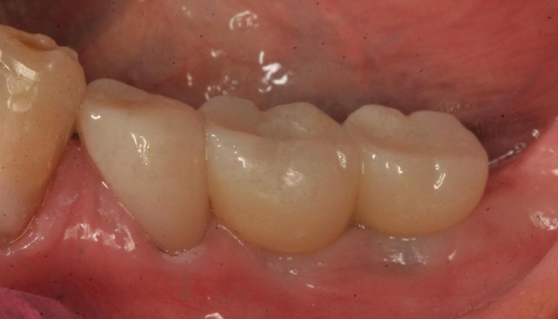 patient with new implant and dental crown in fairfax va