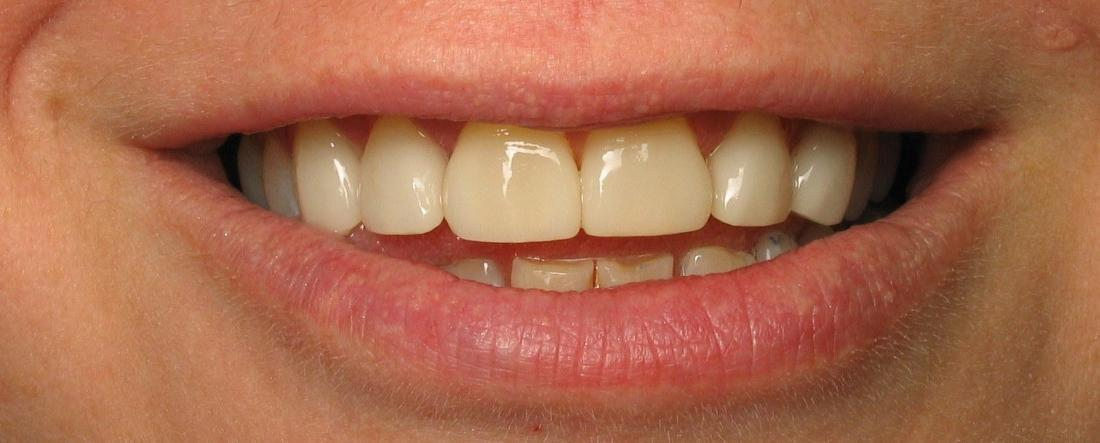 veneers after photo in fairfax va
