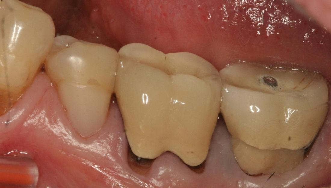 patient who needed an extraction with a new implant and crown in fairfax va