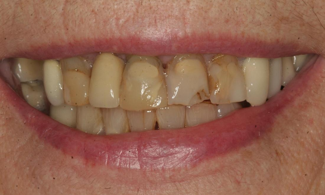 chipped stained damaged teeth
