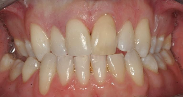 Bonding-Front-tooth-After-Image