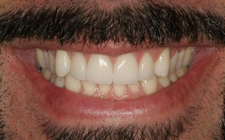 Old-Stained-Bonding-Fixed-with-Porcelain-Veneers-After-Image