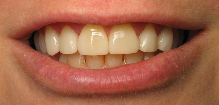 Porcelain-Veneers-After-Image