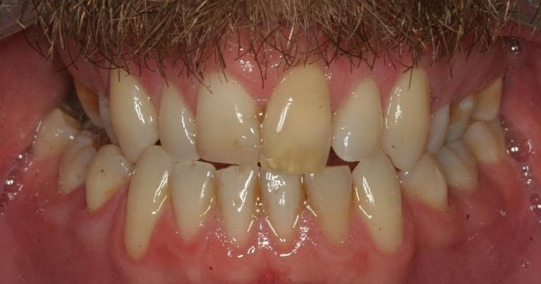 Bonding-Front-tooth-Before-Image