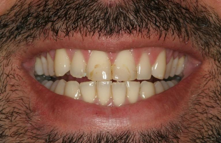 Old-Stained-Bonding-Fixed-with-Porcelain-Veneers-Before-Image